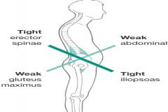 Lower Crossed Syndrome Chiropractor In Smithtown West Islip Ny Long Island Chiropractic Physical Therapy Pllc